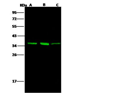AKR1B1 Antibody, Rabbit MAb
