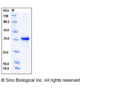 Human TWF1 / PTK9 / Twinfilin-1 Protein
