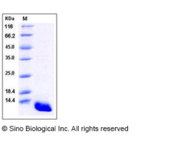 Human S100A8 / CAGA Protein (His Tag)
