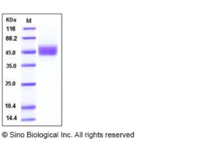 Human FSTL1 Protein (His Tag)