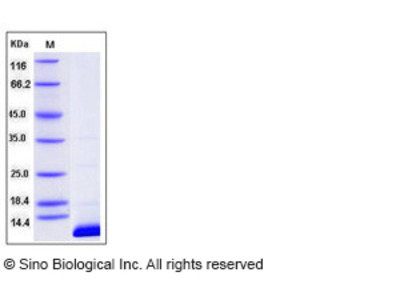 Human S100B Protein (His Tag)