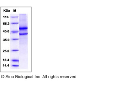 Human SPOCK1 / Testican 1 Protein (aa 21-429, His Tag)