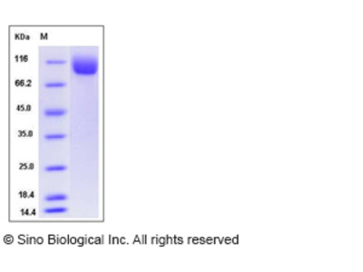 Mouse NAALADL1 Protein (His Tag)