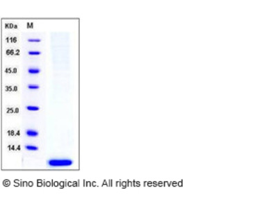 Human S100A6 / CACY Protein (His Tag)