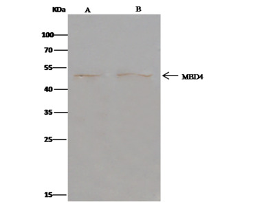 MBD4 Antibody, Rabbit PAb, Antigen Affinity Purified