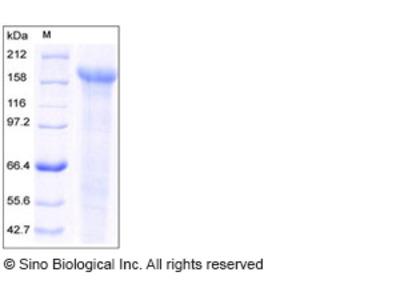 Human JAG1 / Jagged 1 / CD339 Protein (His Tag)