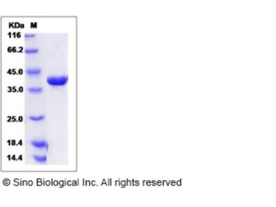 Human SAE1 Protein