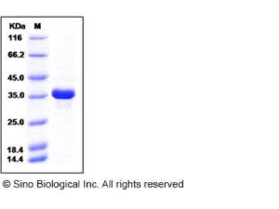 Human AKR1B1 Protein (His Tag)