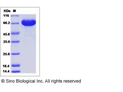 Human A1BG / alpha 1B-Glycoprotein Protein (His Tag)