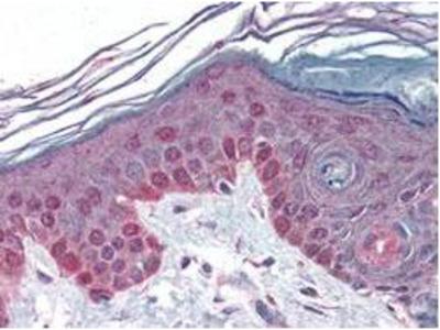 Cyclin T1 Antibody