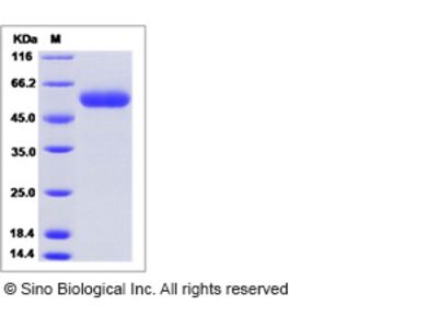 Mouse SCPEP1 / RISC Protein (His Tag)