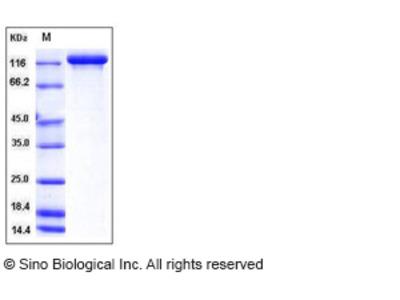 Human Semaphorin 5A / SEMA5A Protein (Fc Tag)