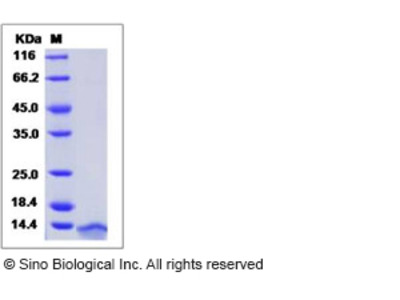 Human CCL3 / Mip1a Protein (His Tag)