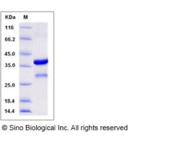 Human BLOC1S2 / BLOS2 Protein (GST Tag)