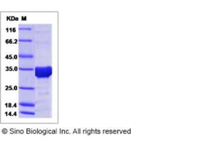 Human Syntenin-1 Protein (His Tag)