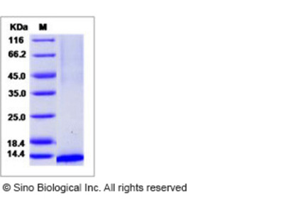 Human CCL23 / MIP 3 Protein (His Tag)