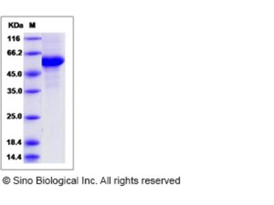 Rat CD70 / CD27L / TNFSF7 Protein (Fc Tag)