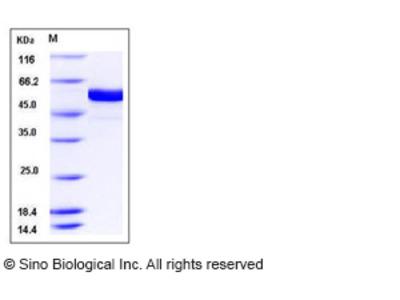 Human FUT8 Protein (aa 68-575, His Tag)