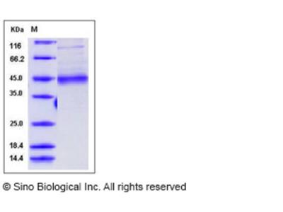 Human MFG-E8 / lactadherin / MFGE8 Protein (His Tag)