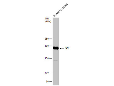 Anti-PZP antibody
