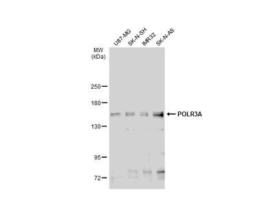Anti-POLR3A antibody