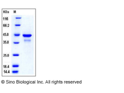 Human SULT2B1 / HSST2 Protein (His Tag)