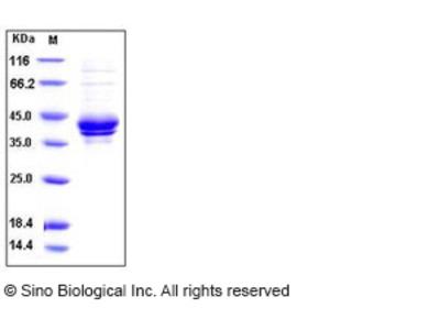 Human I-309 / CCL1 / TCA-3 Protein (Fc Tag)