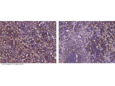 S100A1 / SLAMF8 Antibody, Rabbit MAb