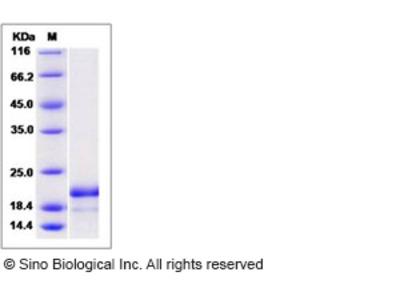 Human ASF1B Protein (His Tag)