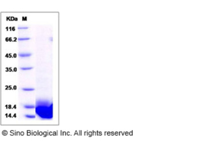 Human LSM3 Protein (His Tag)