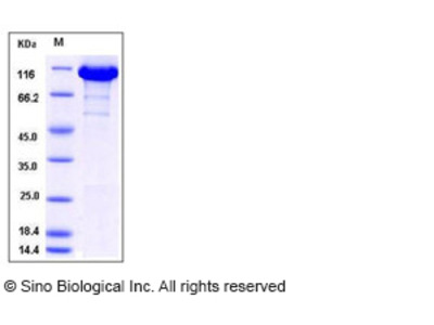 Human ACLY / acly / ATP citrate lyase Protein (His Tag)