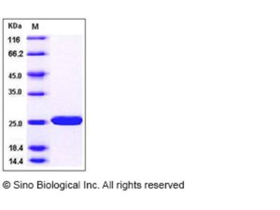 Human SOD2 / Mn-SOD Protein