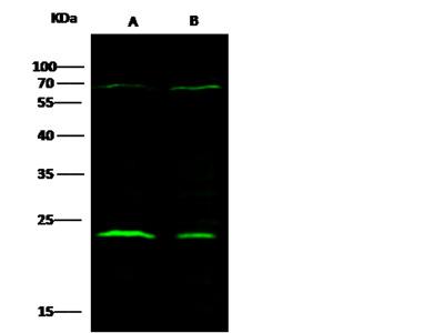 CTHRC1 Antibody, Rabbit MAb