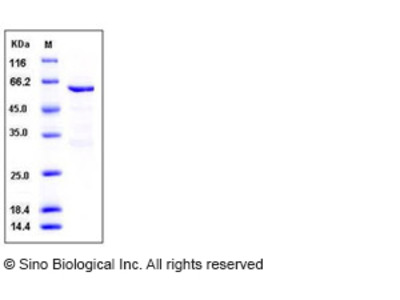 Human MUSK Kinase Protein (aa 433-783, His & GST Tag)