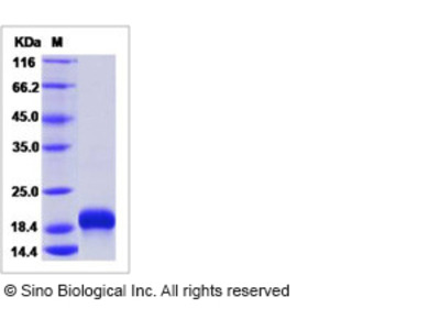 Human CCL28 Protein (His Tag)