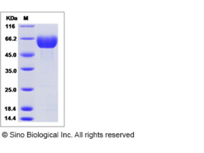 Rat Angiotensinogen / SerpinA8 / AGT Protein (His Tag)
