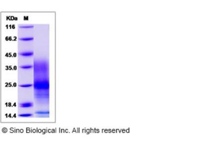 Human Vasoactive intestinal peptide / VIP Protein (His Tag)