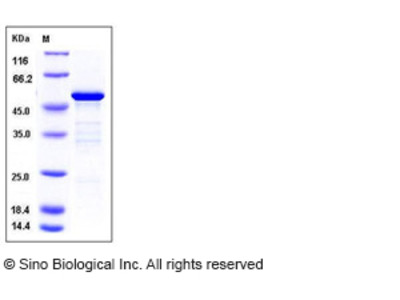 Mouse 14-3-3 epsilon / YWHAE Protein (GST Tag)
