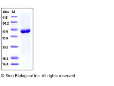 Human ACY1 / Aminoacylase-1 Protein (His Tag)