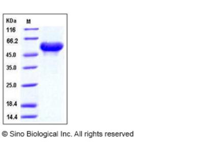 Mouse Arylsulfatase A / ARSA Protein (His Tag)