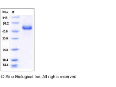 Human HAI-1 / SPINT1 Protein (His Tag)