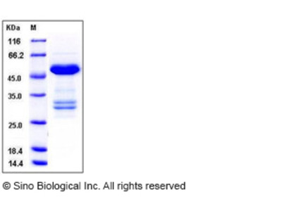 Human TWF1 / PTK9 / Twinfilin-1 Protein (His & GST Tag)