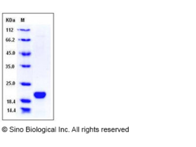 Human LCN1 / VEGP / Lipocalin-1 Protein (His Tag)
