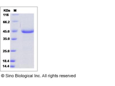 Human AGR3 / hAG-3 / BCMP11 Protein (Fc Tag)