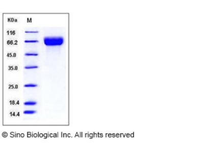 Human SLC3A2 / CD98 Protein (His Tag)