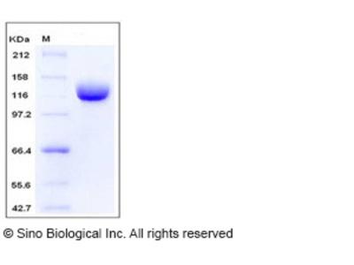 Human ANPEP / CD13 Protein (603 Met/Ile, His Tag)