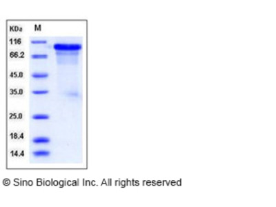 Mouse ECM1 Protein (His Tag)
