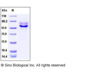 Human Syndecan-1 / SDC1 / CD138 Protein (ECD, His Tag)