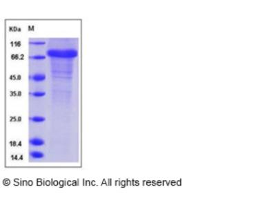 Human Follistatin / FST Protein (Fc Tag)