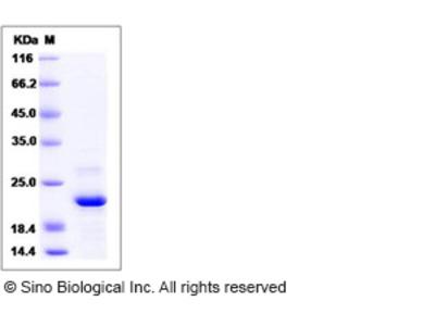 Human ARL2BP / BART1 Protein (His Tag)
